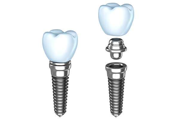 Implant Dentistry Massapequa NY
