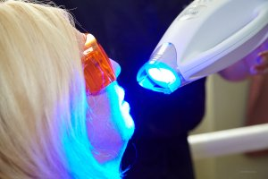 dr-lubliner-teeth-whitening-photo2